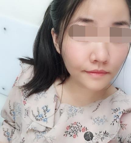 章丘人民医院美科收缩毛孔怎么样你知道吗?效果明显吗?