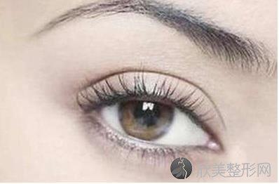 一般全切双眼皮要多少钱?双眼皮全切的优势分析