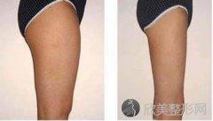 怎么能吸脂瘦腿瘦?吸脂瘦腿怎么做?