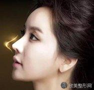 硅胶隆鼻可以维持多少年