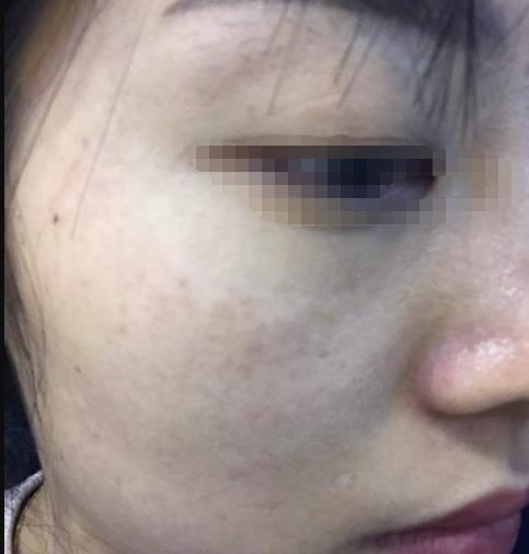温州祛斑整形医院推荐