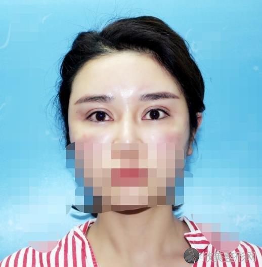 张安莉修复双眼皮修复眼角吗?医生资料及实操眼部整形效果图