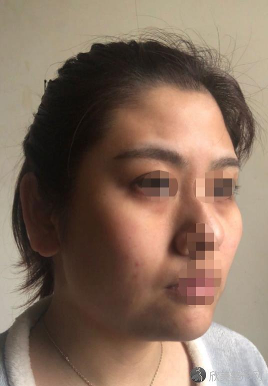 张睅理医生怎么样?擅长哪些项目?做面部除皱的真实效果分享