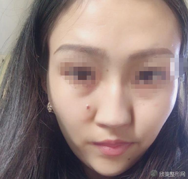 的硅胶假体隆鼻术前照