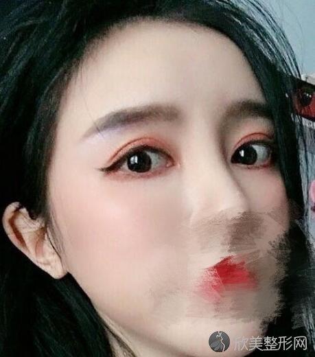 胡洋红修复双眼皮怎么样?术后效果怎么样?