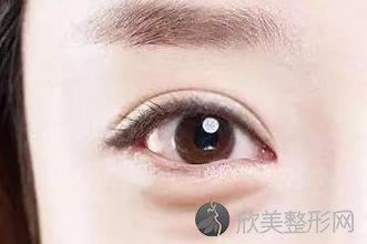 重庆三甲医院割双眼皮多少钱你知道吗?价格表参考