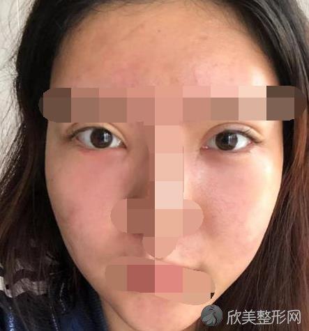 毓璜顶医院双眼皮技术好吗?价格贵不贵呢?内附案例图
