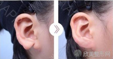耳部整形的类型以及术中术后应注意的事项!