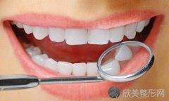 牙齿变白最有效的方法有哪些?什么导致牙齿变黄?