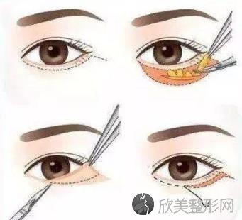 外切去眼袋多久能恢复正常?术后会外翻吗?