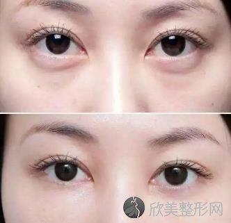 无痕去眼袋效果怎么样无痕去眼袋保持几年?有哪些优点和副作用