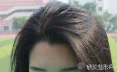 美人尖可以剃掉吗?合适美人尖的发型有哪些?