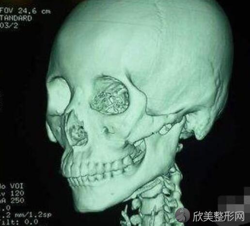 下颌角磨骨手术有风险吗?下颌角磨骨手术的优缺点