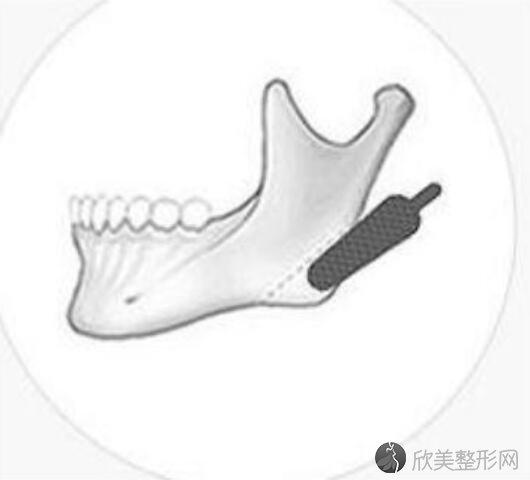 下颌角磨骨手术大概多少钱?影响价格有哪些因素