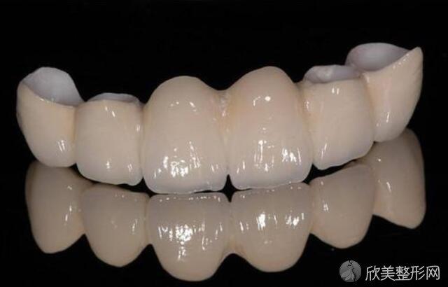 牙齿修复的几种方法?牙及术前的注意事项