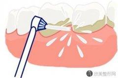 洁牙洗牙对牙齿有害吗?会损伤牙齿么
