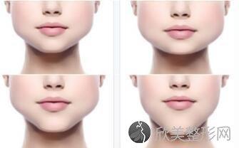 什么是下颌角整形?下颌角整形适合哪些人?