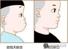 兜齿矫正多大年纪最佳?别让畸形影响孩子成长