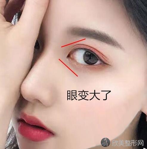 全切双眼皮加开眼角一共多少钱?手术后应该注意些什么呢?