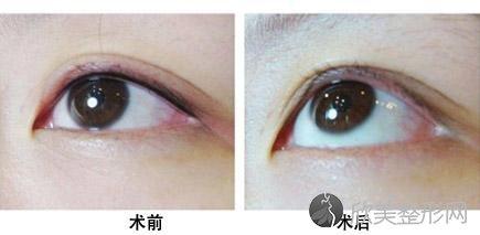 洗眼线的危害!洗眼线多久能恢复正常?