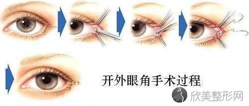 避免开外眼角收缩的护理方法大分享~