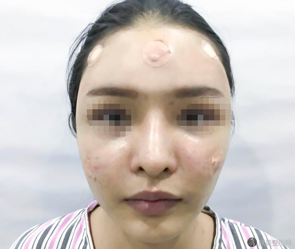 刘庆阳手术案例分享~来看面部填充之后的真实效果吧