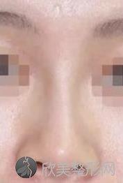 上海华美李健做鼻子厉害吗?价格表参考