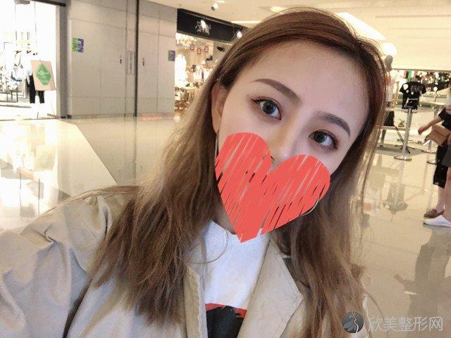 上海市东方医院刘庆阳做埋线双眼皮效果图术后1-7天分享