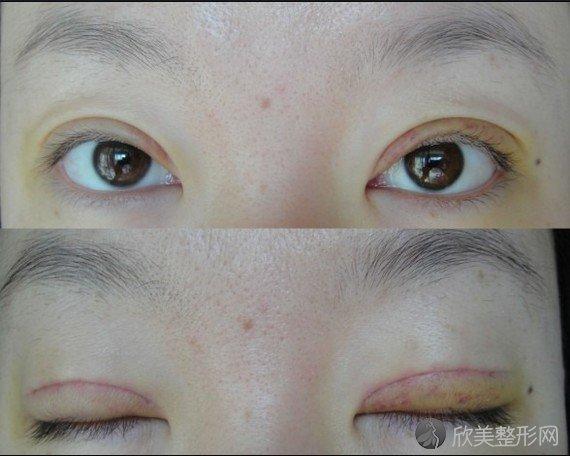 衡阳附二整形美容怎么样?价格表|双眼皮案例图