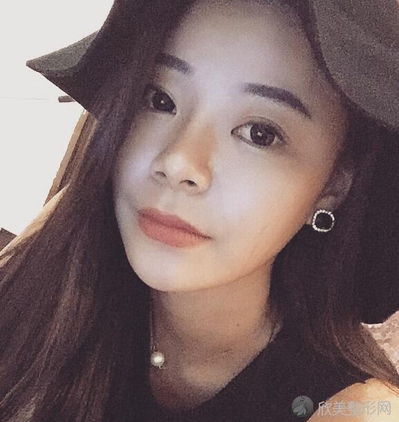 刘成胜下颌角手术案例分享