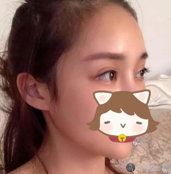 上海九院韦敏颧骨下颌角案例,恢复过程分享
