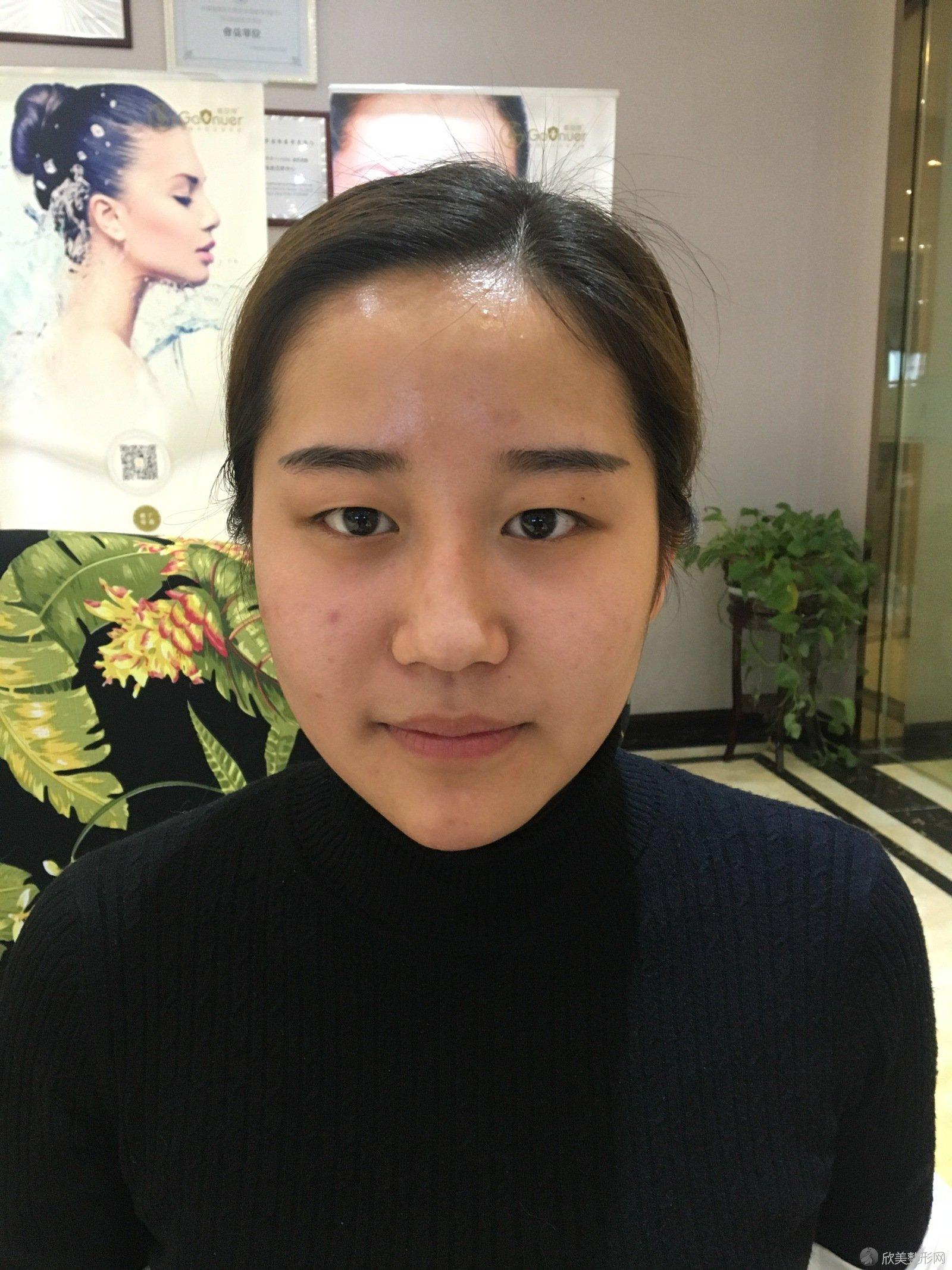 八大处杨晓楠双眼皮手术案例,术后恢复效果分享