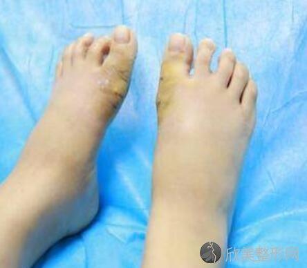 大脚骨手术真实案例分享,快来看看术后恢复效果吧
