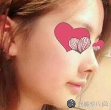 重庆医科大学第一附属医院整形外科鼻综合案例恢复效果分享,项目价格表