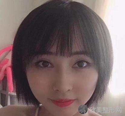 上海第九医院宋欣割双眼皮怎么样?两个月的案例效果展示