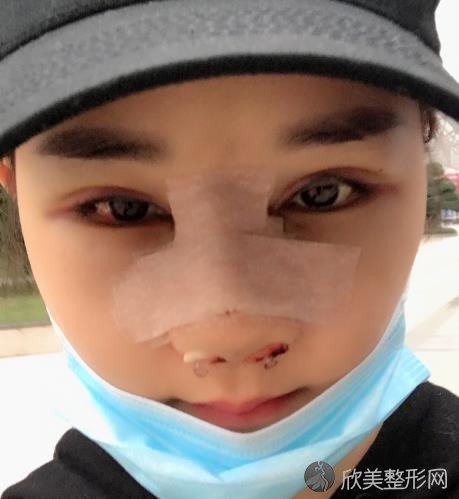 山东省立医院薛峰双眼皮&隆鼻案例,全面改善之后变女神
