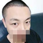 植发手术案例分享,拯救发际线,不再担心秃头了