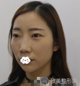 成都八大处医院综合鼻整形效果对比图 精致自然