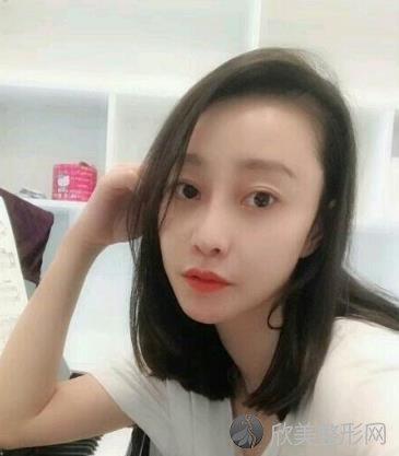 广东省人民医院整形外科植发案例效果分享,再也不秃头啦