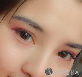 北京八大处周传德双眼皮真实案例,术后恢复效果分享