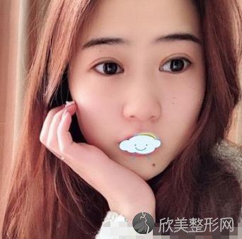 中山市第三医院朱雷韩国双眼皮案例,术后恢复效果分享