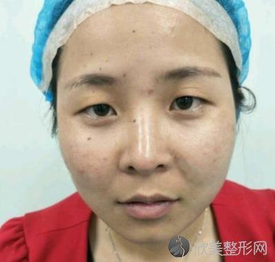 武汉韩亚整形医院的双眼皮效果如何?真实案例分享+前后对比效果图