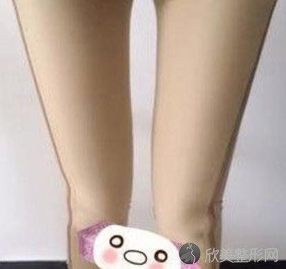 南京美贝尔吸脂瘦腿案例分享,术后效果太好了,终于摆脱大象腿了