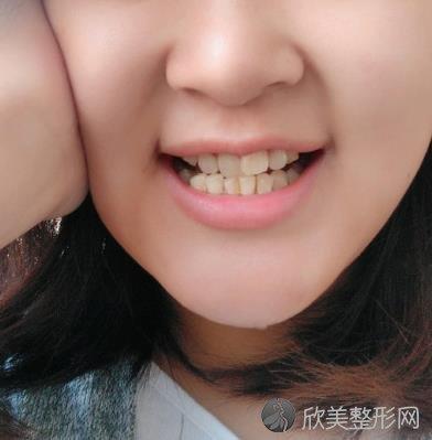 广州康源口腔医院牙齿矫正案例分享,术后效果展示,一年半拥有一口整齐洁白的