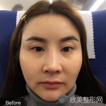 全脸埋线提升案例恢复过程分享,术后效果展示