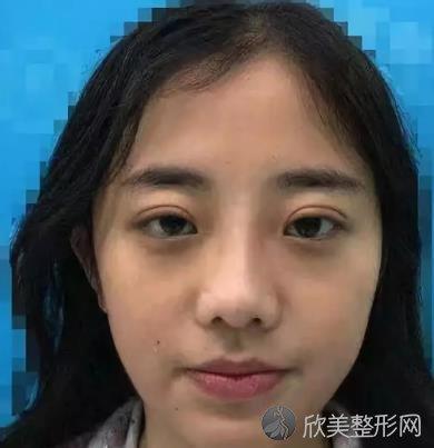 上海市第九医院隆鼻案例,术后恢复过程分享