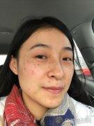 oe光子嫩肤祛斑案例前后效果图分享