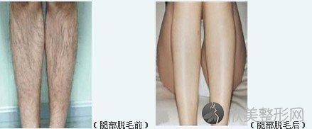 关于郑州东方整形医院脱毛的优点及护理方式