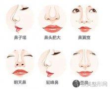 美不美先看鼻 什么样的鼻子需要改善
