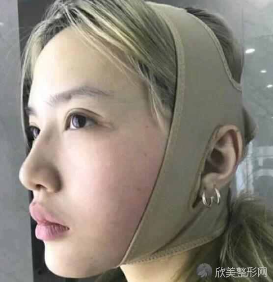 双下巴吸脂是真实案例渲染 侧脸简直无敌!
